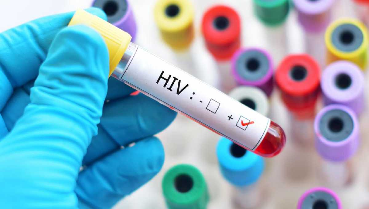 66 found HIV positive in Sylhet