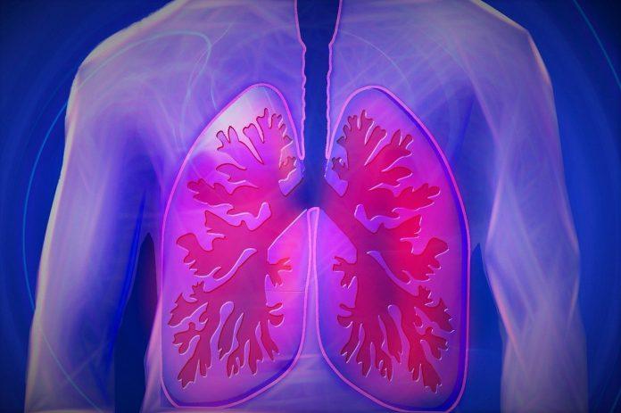 TBC pada manusia muncul 9.000 tahun lalu