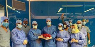 Tim RS King Fahd Jeddah angkat tumor 7 kg dari perut pasien 50 tahun