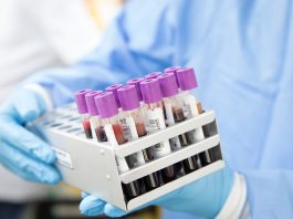 COVID-19 – Rusia kembangkan preparat blokir replikasi virus