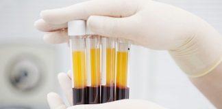 COVID-19 – Lebih 10.000 pasien di Rusia terima plasma darah dengan antibodi