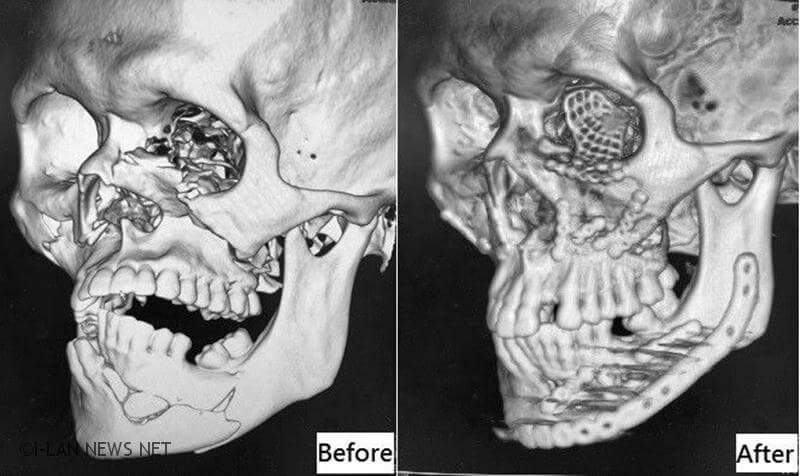 顏部骨頭大量位移、碎裂,不止鼻樑歪斜、兩眼不對稱,更無法張嘴進食,屬於複雜性顏面骨折。