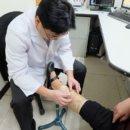 下肢嚴重靜脈曲張 靜脈黏膠閉合術助患者恢復腳力