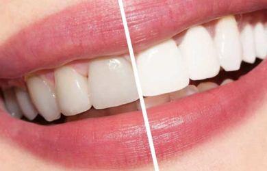 Tips Mudah Menjadikan Gigi Kamu Menjadi Putih Cobain Biar Terlihat