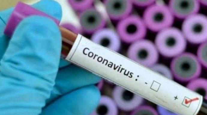Virus-Corona