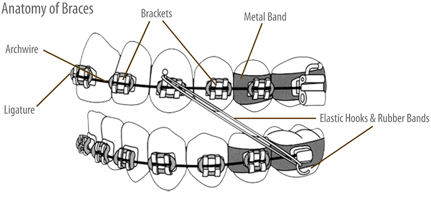 anatomy of braces