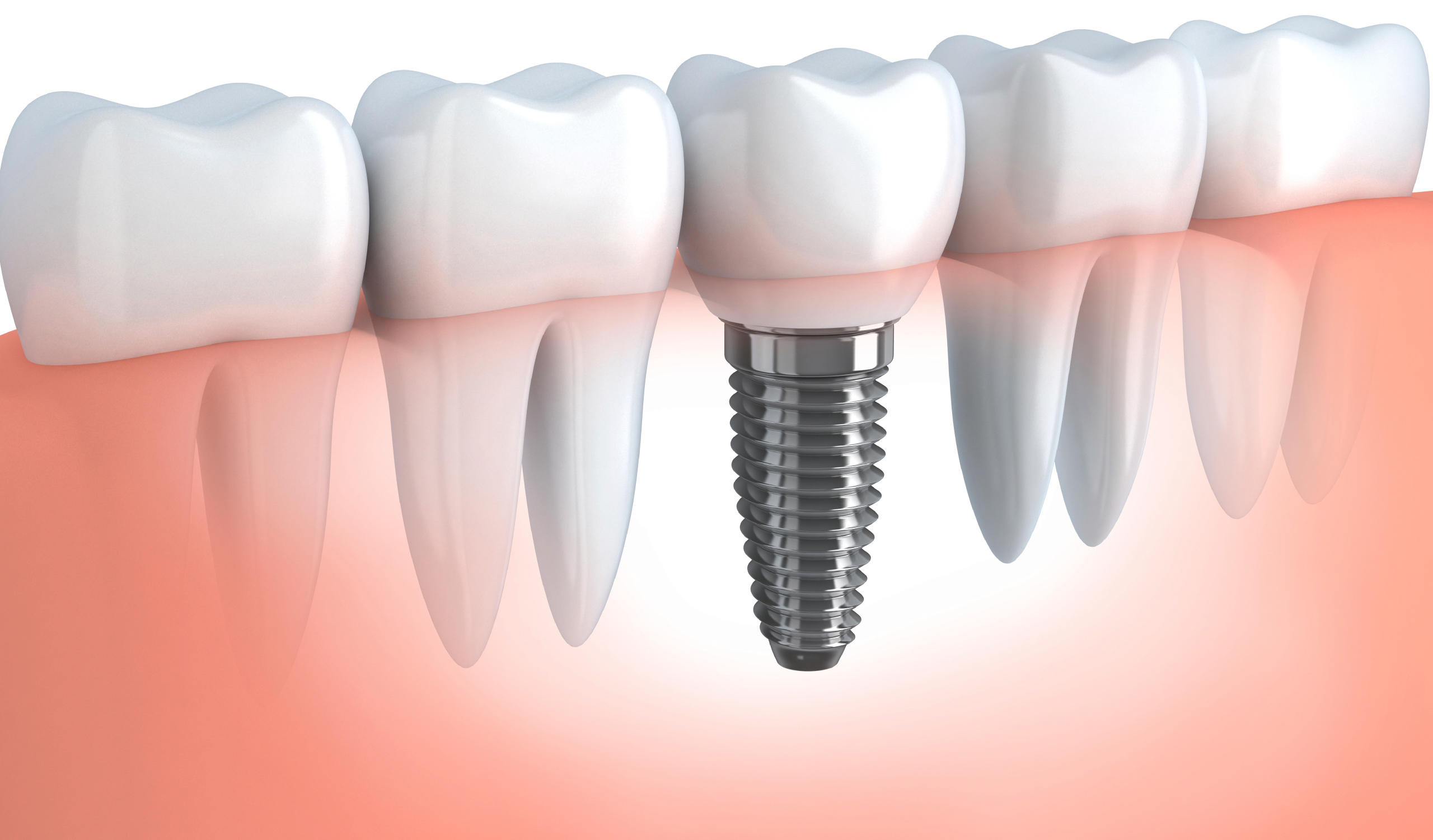 Image result for cấy ghép Implant