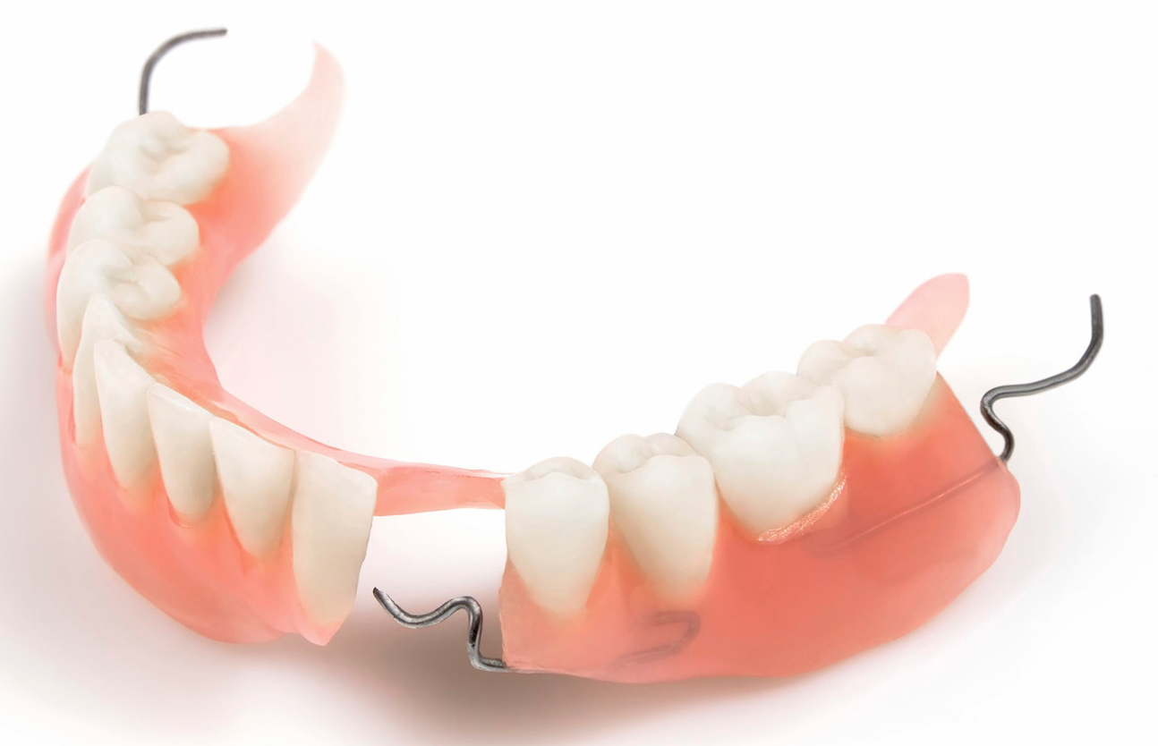 Kết quả hình ảnh cho Hàm giả tháo lắp là một phương pháp phục hình lại răng