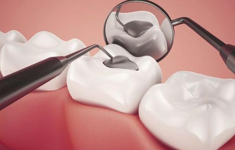 Hàn răng bằng công nghệ nào tốt nhất hiện nay?