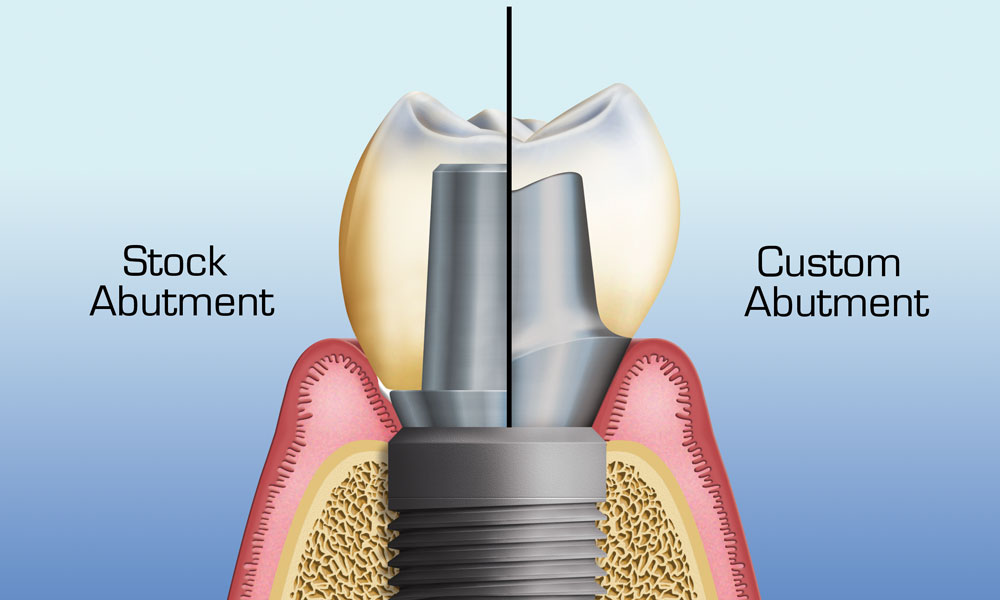 custom abutments