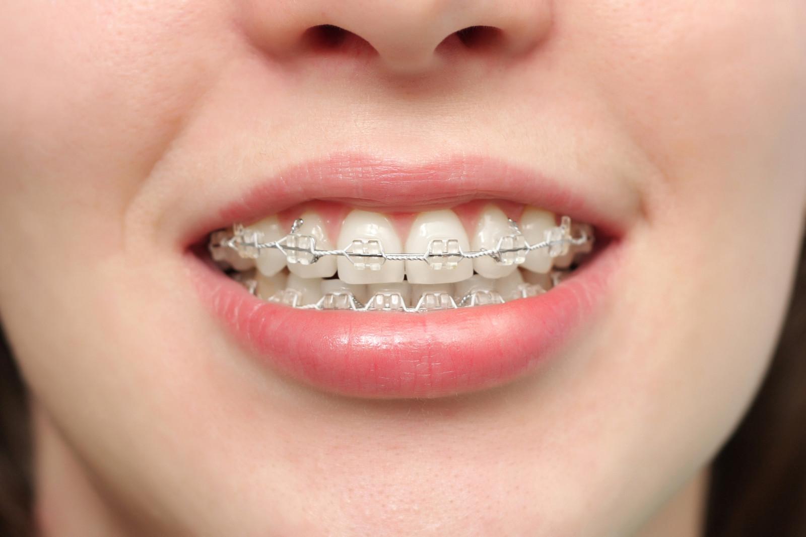 Kết quả hình ảnh cho răng moc lệch lạc,hàm hẹp áp dụng với kỹ thuật