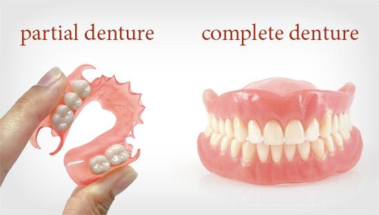 partial denture vs full denture