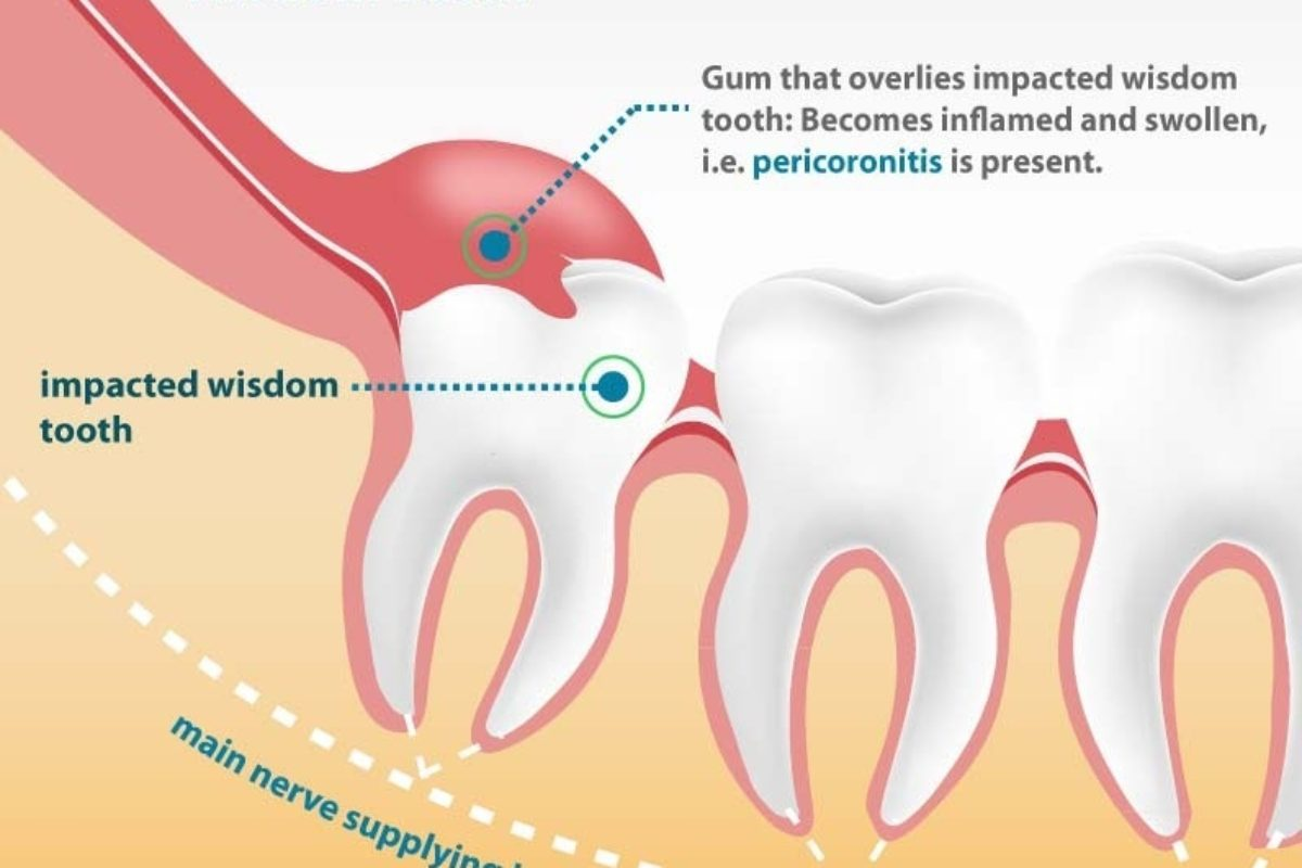 Root canal treatment cost procedures in vietnam wisdom tooth extraction pooptronica