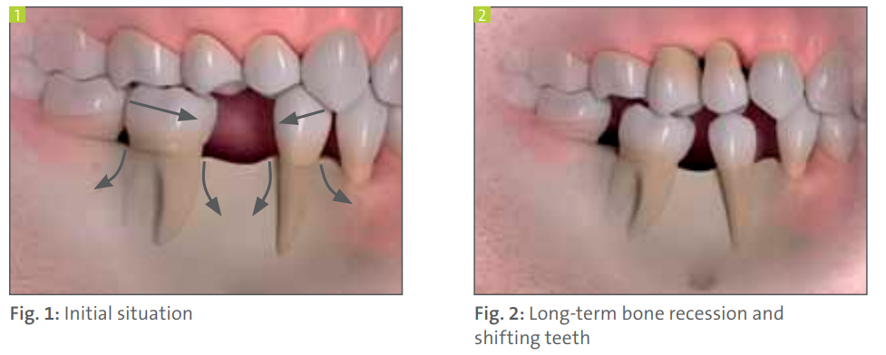 effects of missing teeth