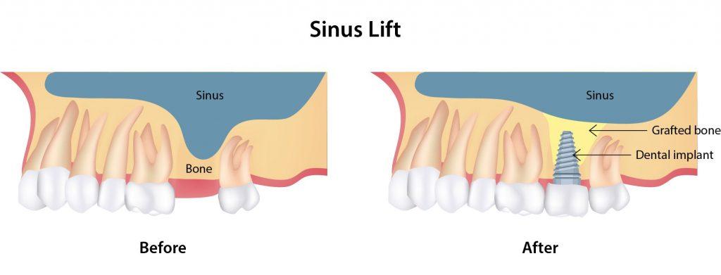 sinus lifting